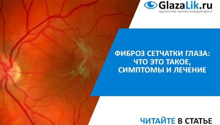 Эпиретинальный фиброз сетчатки глаза, лечение фиброза