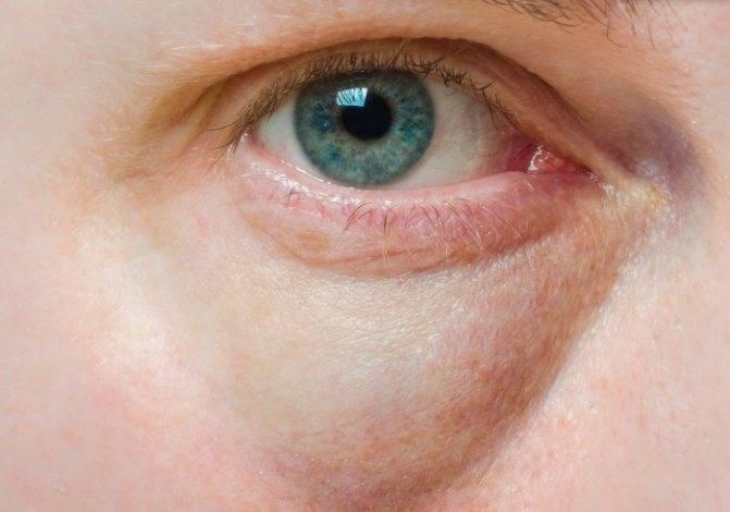 """Отеки под глазами: методы лечения - """"здоровое око"""""""