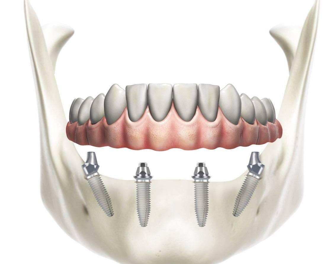 Имплантат с коническим соединением c1