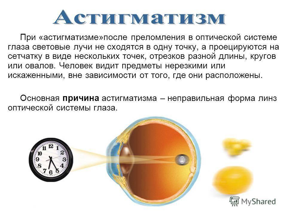 Сложный астигматизм , методы лечения, особенности болезни.