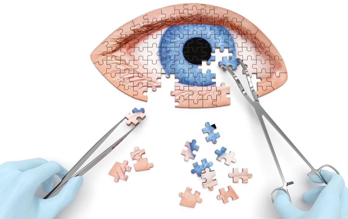 Склеропластика глаз: что это такое, за и против, особенности операции у детей, отзывы