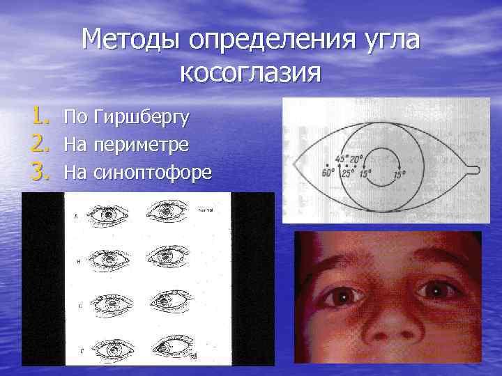 Угол косоглазия: измерение по гиршбергу, показания, измерения, результаты oculistic.ru