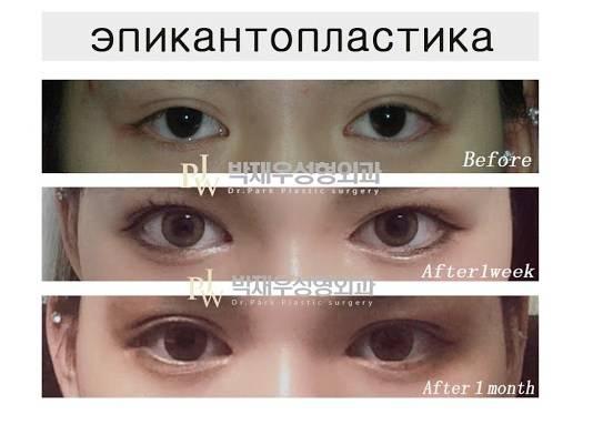 Эпикантус у человека: что это такое, методы удаления oculistic.ru эпикантус у человека: что это такое, методы удаления