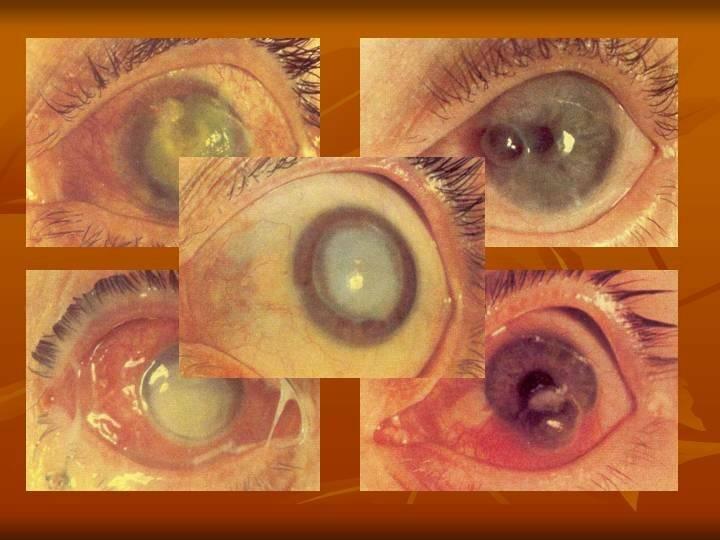 Эндофтальмит: воспаление радужной оболочки глаза - симптомы и лечение гнойного