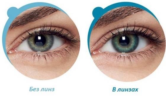 Минусы ношения контактных линз: сколько можно носить однодневные, как, вред и польза, как долго, как правильно, как начать