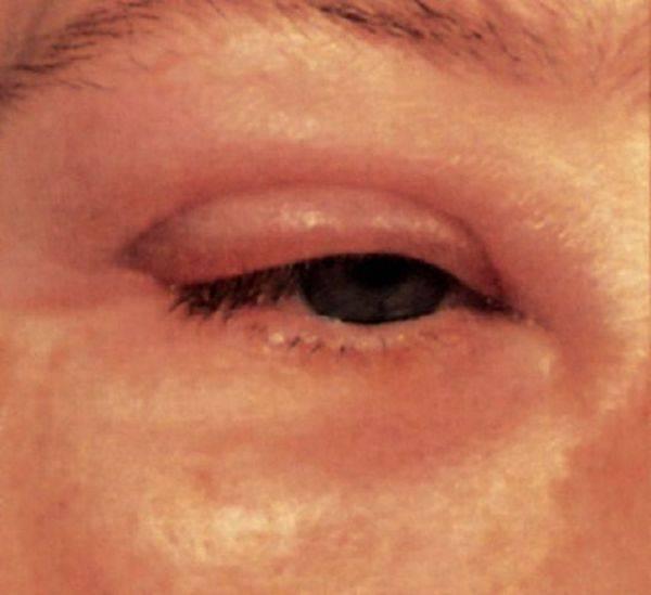 Аллергия на глазах - чем лечить, основные симптомы заболевания