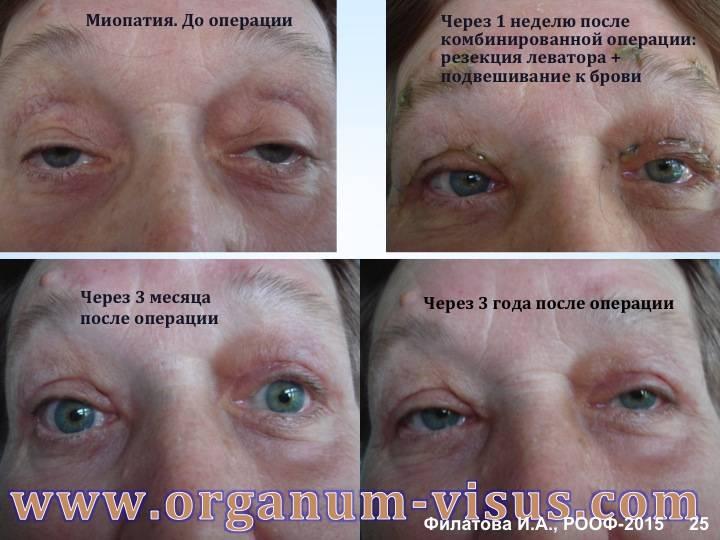 Миопатия - что это такое, симптомы, лечение, причины, диагностика