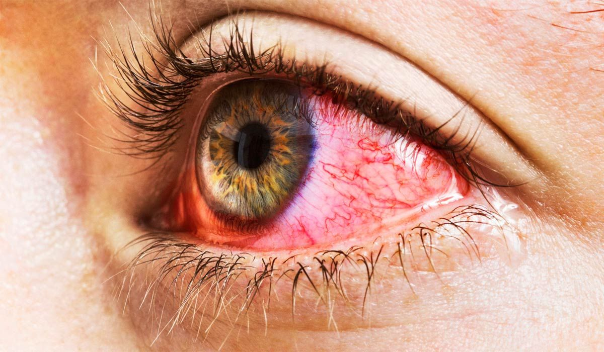 Грибковое заболевание глаз симптомы фото