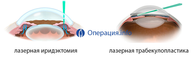 Селективная лазерная трабекулопластика (slt) | мнтк «микрохирургия глаза» им. акад. с.н. федорова