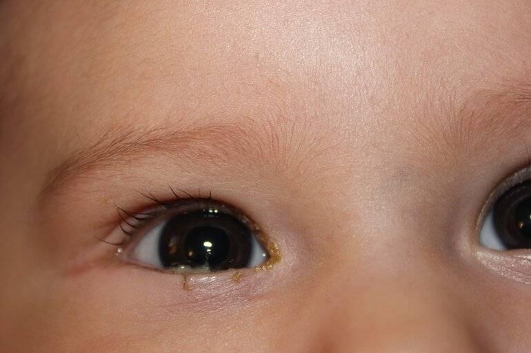 Слезится глаз у грудничка 2 месяца: что делать, если у 2-месячного ребенка слезотечение