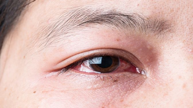 5 эффективных средств, которые помогут, если лопнул сосуд под глазом