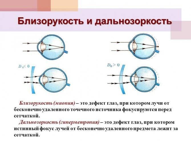 Гиперметропия (дальнозоркость): что это такое,  причины, симптомы и лечение патологии