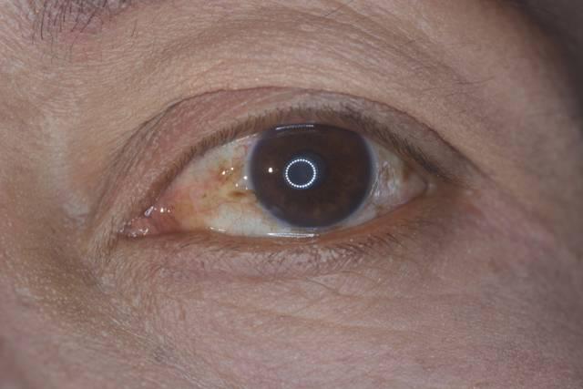 Мутно в глазах, причины, симптомы, лечение, профилактика.