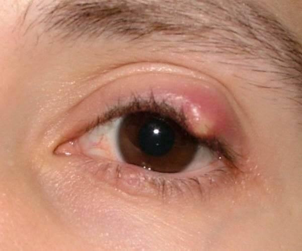 Больно моргать одним глазом: что делать, если болит нижнее или верхнее веко, уголок глаза, боль при надавливании - медицина - здорово!