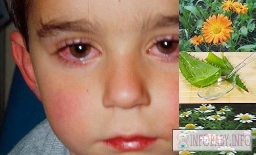 Лечение конъюнктивита глаз у детей, чем лечить в домашних условиях народными средствами