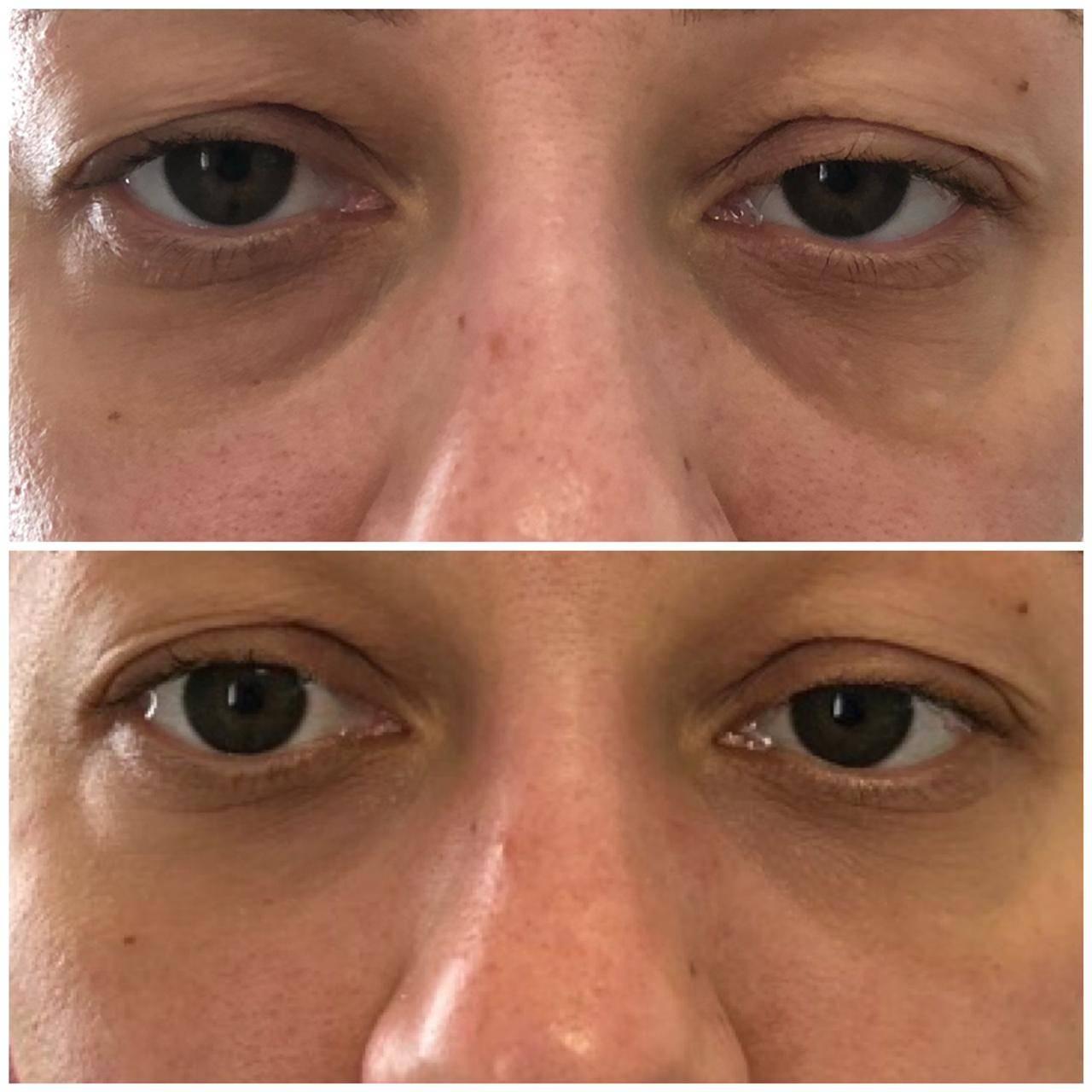 Впадины под глазами: как убрать, почему появляются, лечение, фото