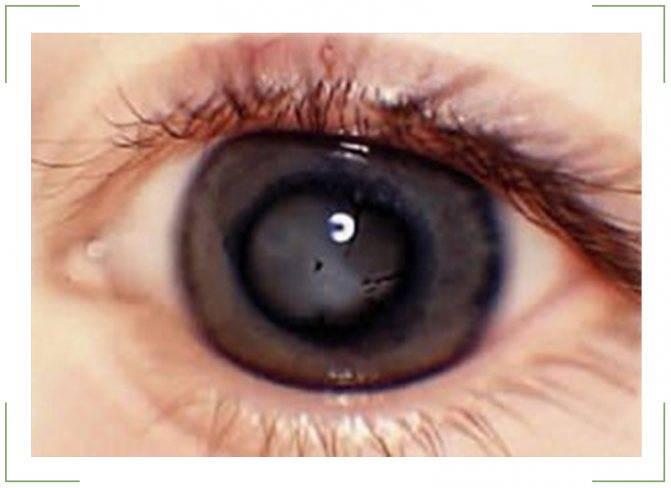 Болезнь, которую заметит не каждый. расслоение сетчатки глаза: чем оно опасно, лечение