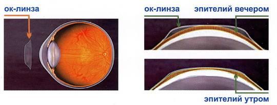 Ортокератологические линзы - что это, отзывы о применении