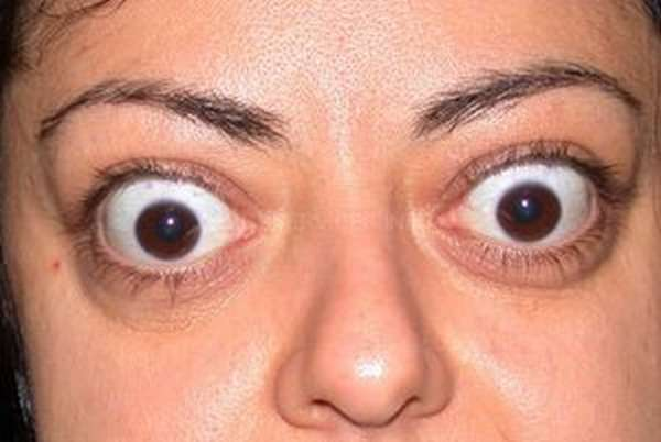 Экзофтальм — причины и лечение пучеглазия