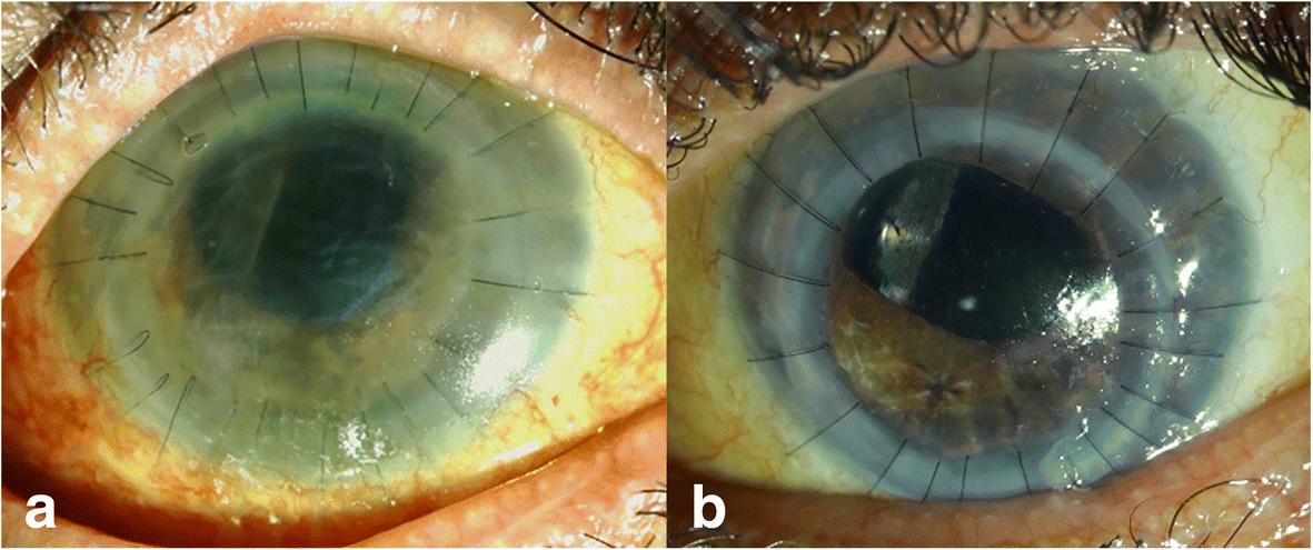 Кератопатия глаза: симптомы и лечение