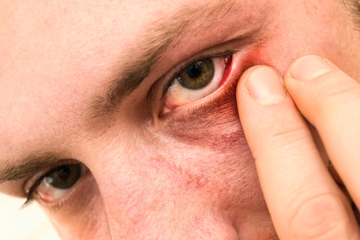 Опухло нижнее веко на одном глазу и болит: причины, что делать для лечения?