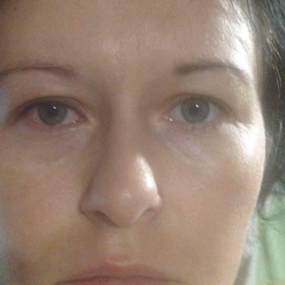 Как снять отеки с глаз после слез: медицинские препараты и народные способы, чтобы быстро избавиться от симптома