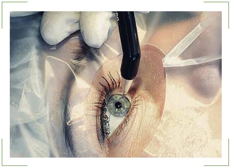 После лазерной коррекции зрения – что нельзя делать