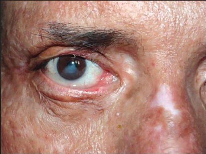 Ожог роговицы глаза — лечение, что делать, последствия - онколо́гия
