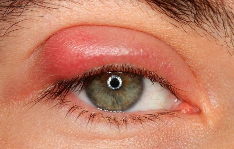 Ячмень на глазу застывший