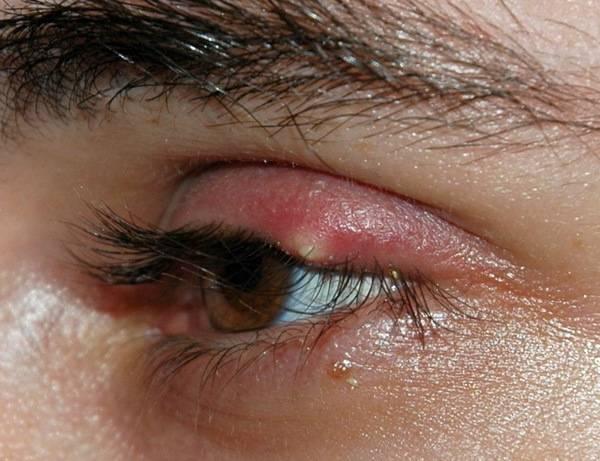 Особенности заболевания глаз блефарит: как лечить недуг