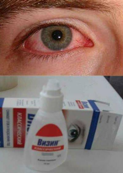 Капли для восстановления роговицы глаза - правила применения