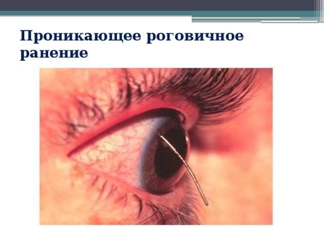 Травмы глаза и оказание первой помощи: обзор методик