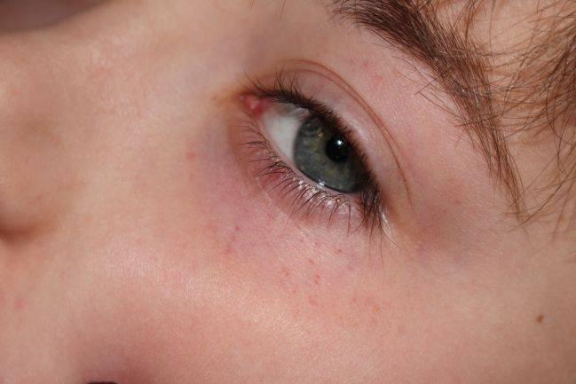 Красные круги под глазами у ребенка: причины, методы лечения