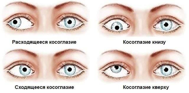 Упражнения от косоглазия - зарядка для глаз при косоглазии у взрослых и детей
