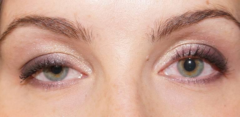 Один глаз больше другого: причины у ребенка, как исправить, что делать