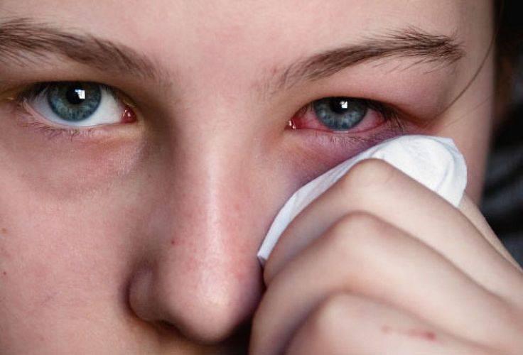 Могут ли от линз болеть глаза и голова