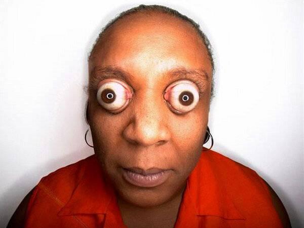 Болезнь выпученных глаз, как называется и лечиться?