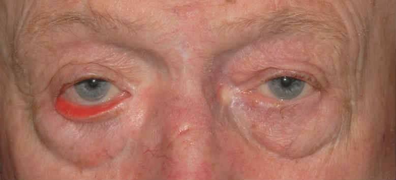 Слезотечение у пожилого человека: какие глазные капли использовать