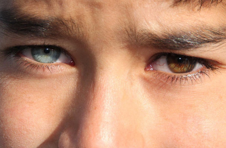 Что такое гетерохромия глаз? почему глаза у людей разного цвета: причины