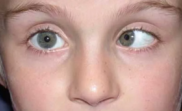 Глаза в разные стороны: разновидности косоглазия, симптомы