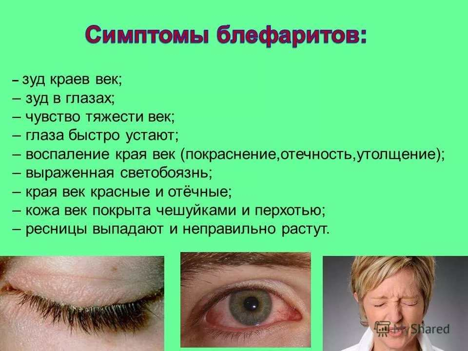 Блефарит - симптомы и лечение медикаментозными средствами
