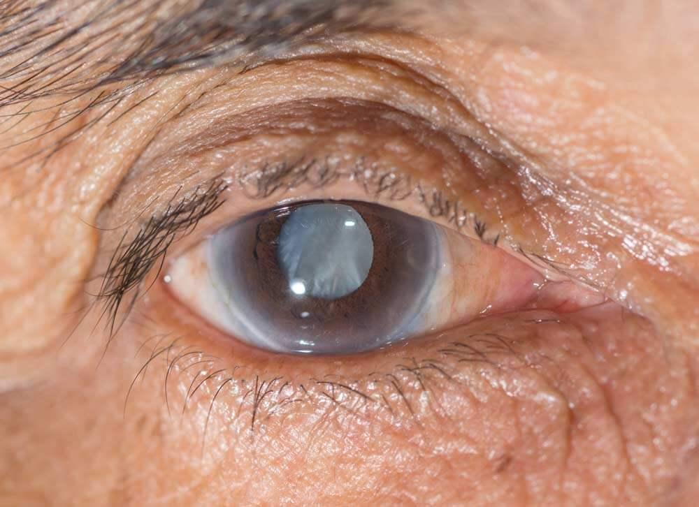 Портит ли компьютер зрение? глазные капли от усталости глаз от компьютера. как сохранить зрение при работе за компьютером
