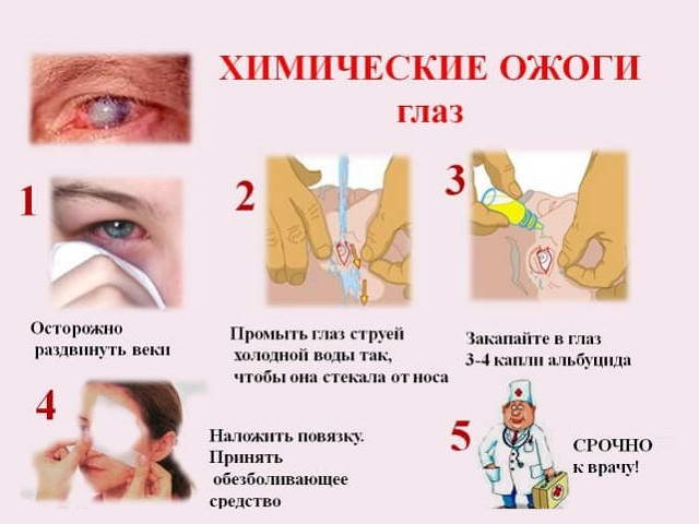 Что делать, если болят глаза от сварки?