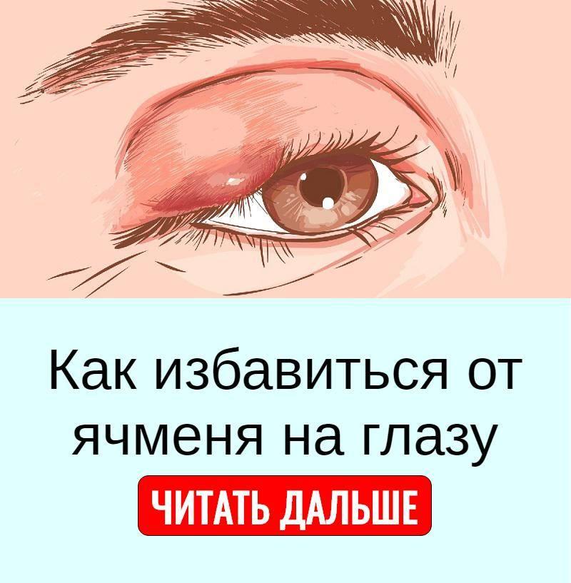 Что делать, если ячмень на глазу не проходит 2 недели или месяц?