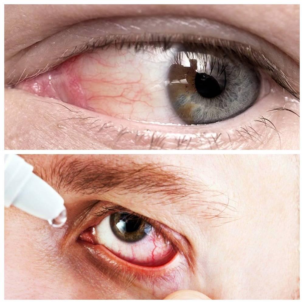 Чем опасна пленка на глазах?