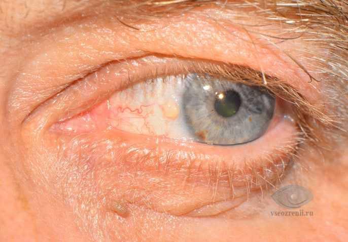 Желтые пятна на веках глаз лечение народными