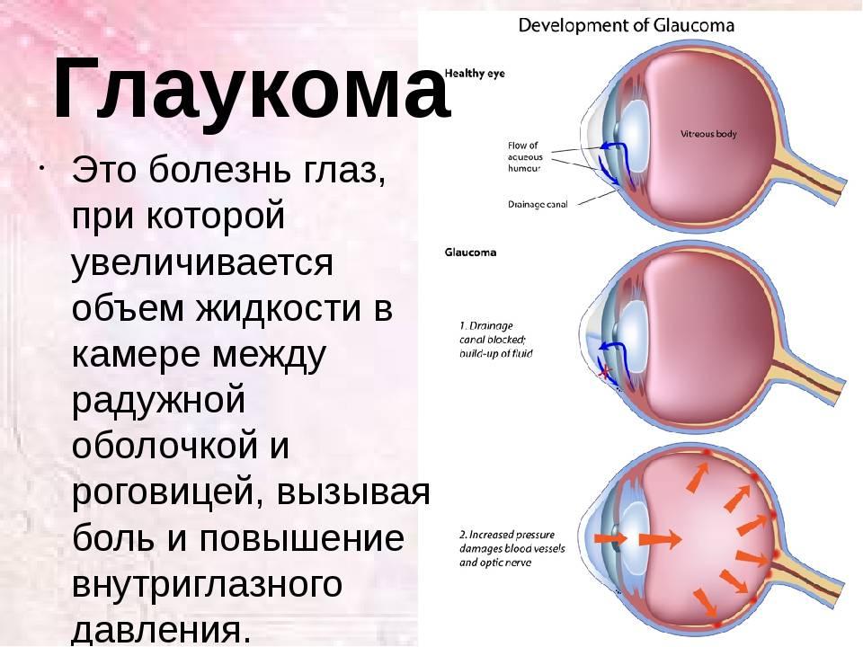 Противопоказания при глаукоме: образ жизни, что можно, а что нельзя