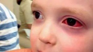 У ребенка покраснел белок глаза: о чем может говорить такой симптом?
