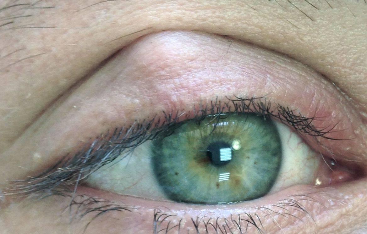 Киста молля на веке глаза: причины и лечение