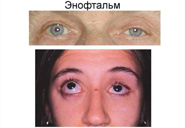 Энофтальм - западание глазного яблока